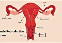 Kanker Vagina