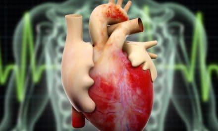 Penjelasan Mengapa Sarang Semut Ampuh Mengobati Sakit Jantung