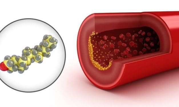 Jus Kulit Buah Manggis untuk Mengobati Kolesterol