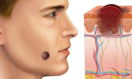 Jus Kulit Buah Manggis untuk Mengobati Tumor