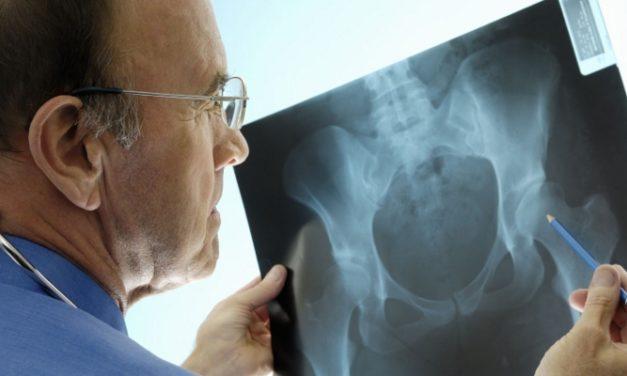Ketahuilah Beberapa Mitos Seputar Osteoporosis