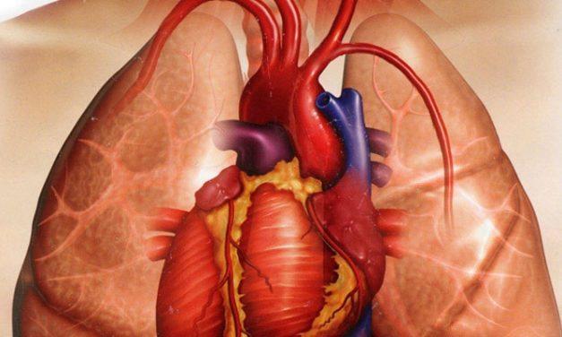 Kelasi Jantung, Harapan Baru Penderita Jantung?