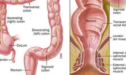 Pencegahan dan Pengobatan Kanker Kolorektal