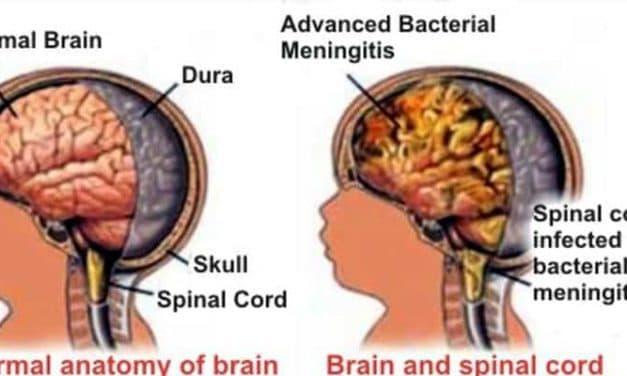 Akibat Meningitis Pada Otak Penderitanya