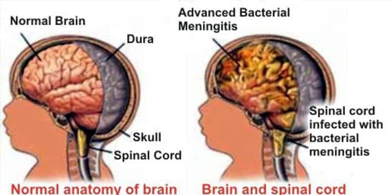 Akibat Meningitis