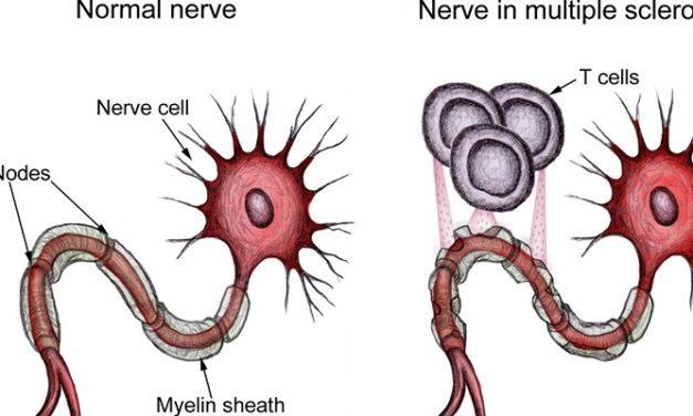 Apa Penyebab Multiple Sklerosis? Bagaimana Gejala dan Cara Memeriksanya!