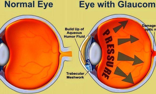Mengenal Jenis-jenis Glaukoma dan Proses Terbentuknya!
