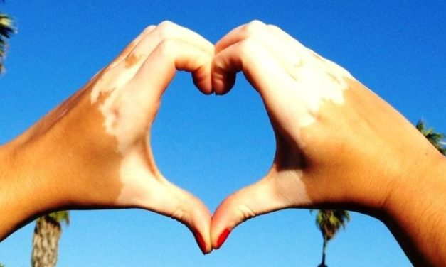 Vitiligo: Ketika Kulit Memiliki Bercak Putih