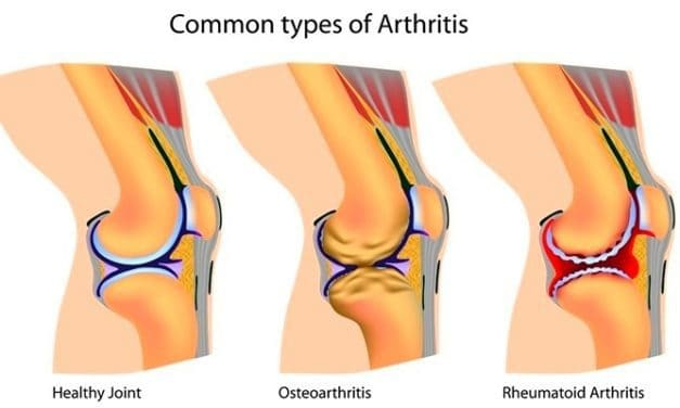 Artritis: Apa itu Osteoartritis?