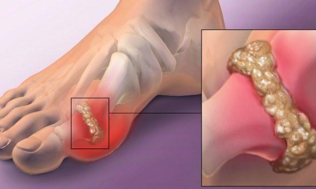 Artritis: Encok, Apa Penyebab dan Cara Mengobatinya?