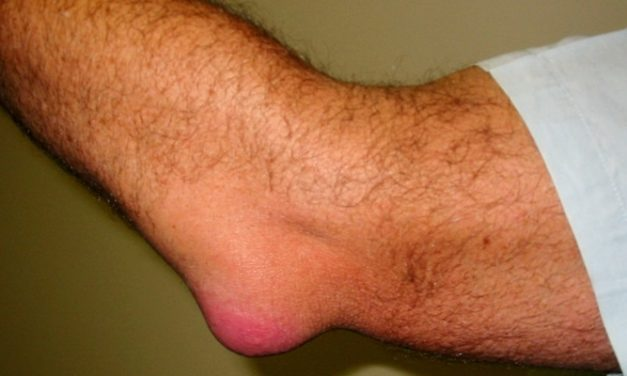 Artritis: Bursitis, Gejala dan Penyebabnya