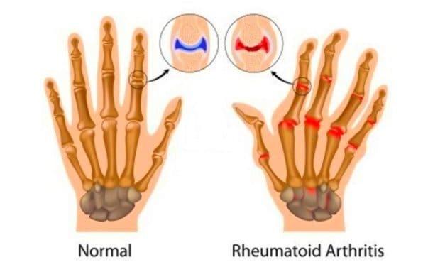 Artritis: Apa itu Artritis Rematoid?