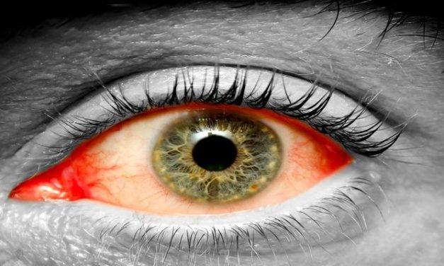 Apa Penyebab Mata Merah?