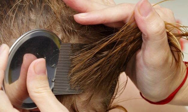 Cara Mencegah Penyebaran Kutu Rambut