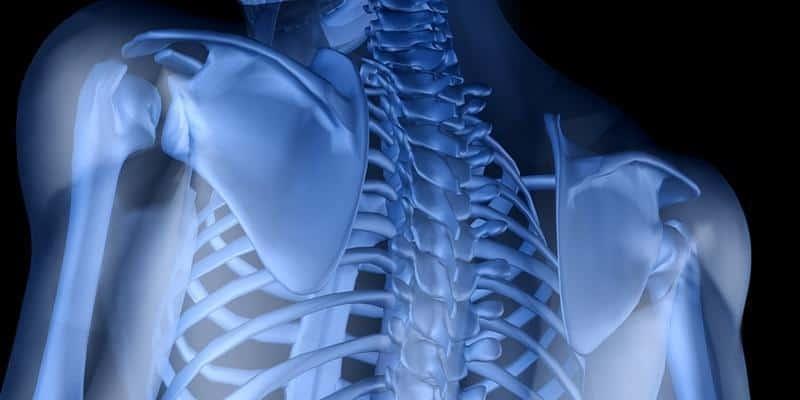 Apa Itu Kanker Tulang? Deherba.com