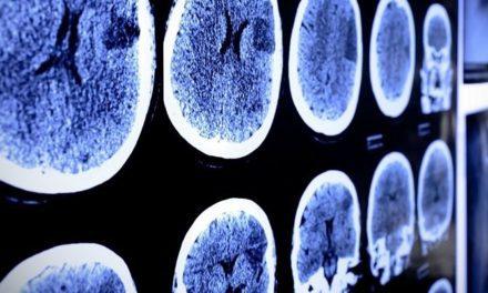 Apa Ciri Tumor Testis?