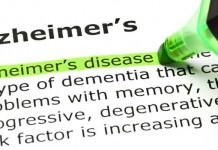 Tanya-Jawab Alzheimer