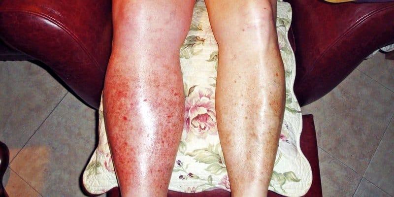 Image result for penyakit trombosis vena dalam