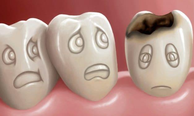 Bahaya Gigi Berlubang Jika Dibiarkan!