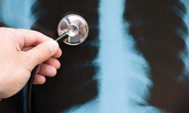 """Pneumonia: Penyakit yang Dijuluki """"Paru-Paru Basah"""""""