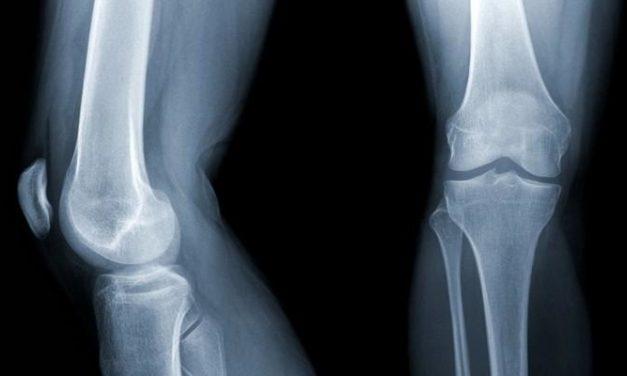 Apa yang Jadi Penyebab Osteoporosis?