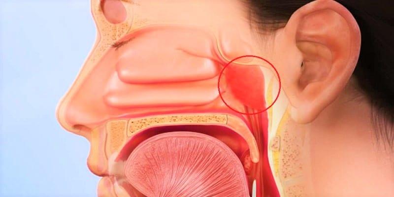 Adenoiditis atau Peradangan Adenoid