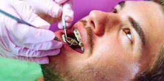 Perawatan Behel Gigi atau Kawat Gigi