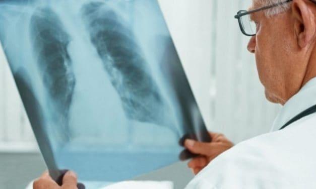 Apa yang Sebenarnya Jadi Penyebab TBC?