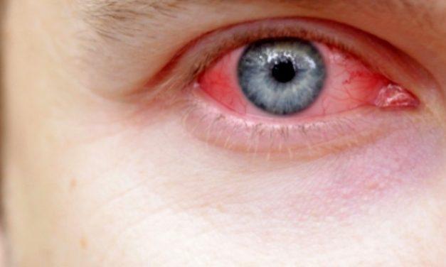 Mata Merah–Gejala, Penyebab dan Tips Pengobatan Alami