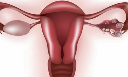 Apa Gejala Tumor Uterus?