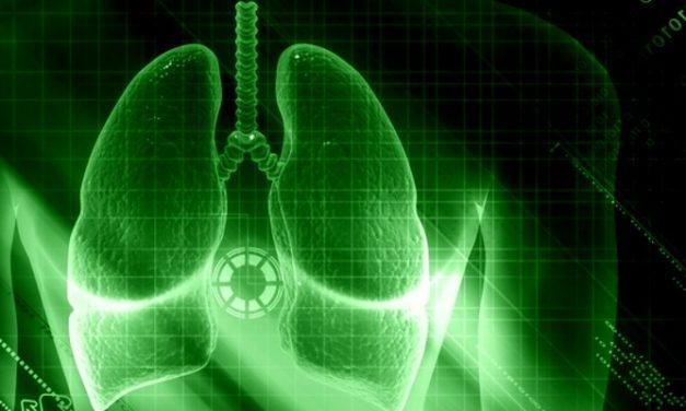 Penyakit Pneumonia dan Cara Menyembuhkannya