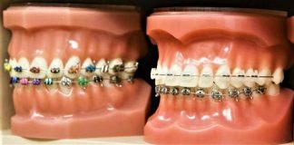 Behel Gigi atau Kawat Gigi