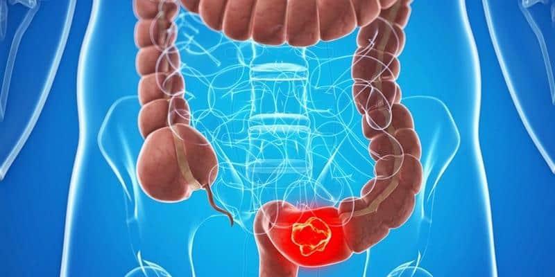 Penyebab, Gejala, dan Pengobatan Kanker Kolorektal