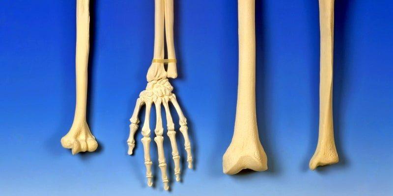 Kanker Tulang