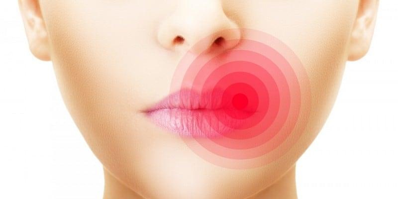 Penyebab, Gejala, dan Pengobatan Kanker Rongga Mulut