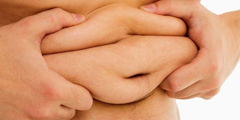 Apa yang Menjadi Penyebab Obesitas?