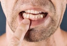 Chronic Periodontal Disease Sebabkan Disfungsi Ereksi