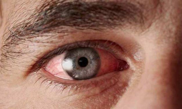 Memahami Alergi Mata