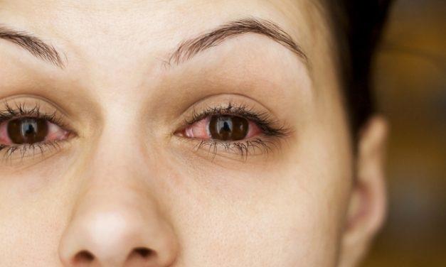Solusi Mudah untuk Mata Merah Akibat Alergi