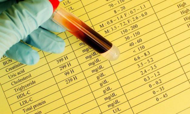 Pahami Hasil Test Kolesterol dalam Darah untuk Hidup Lebih Sehat
