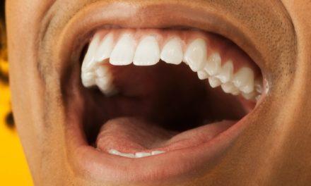 Kenali Gejala Kanker Rongga Mulut dan Pilihan Pengobatan Herbal Terbaiknya