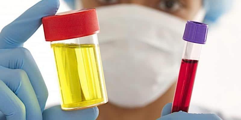 5 Ciri-Ciri Kanker Ginjal yang Mudah Dikenali