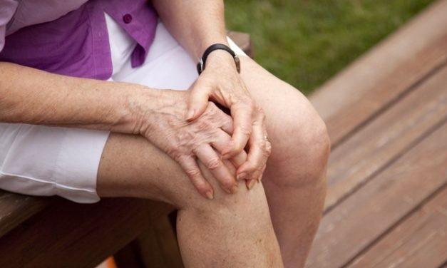 Osteoartritis: Sakit Pengapuran Tulang dan Sendi