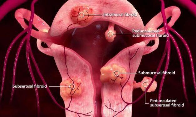 Mioma Uteri, Penyakit Miom Rahim yang Sebenarnya Tak Terlalu Berbahaya