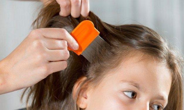 5 Cara Menghilangkan Kutu Rambut dan Telurnya Sampai Tuntas