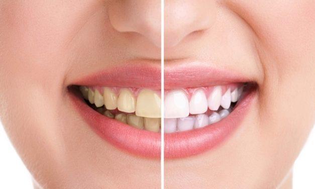 10 Cara Memutihkan Gigi Kuning Tanpa Perlu ke Dokter Gigi
