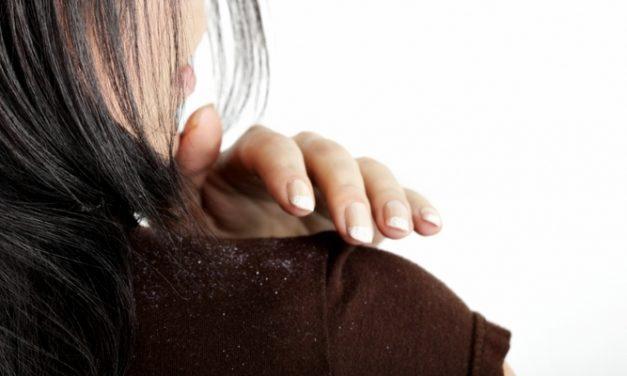 7 Cara Alami Menghilangkan Ketombe yang Patut Dicoba