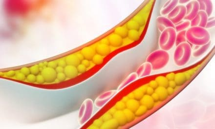 Gejala-Gejala Kolesterol Tinggi