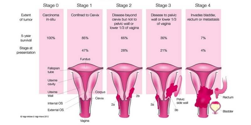 gambar kanker serviks stadium 4