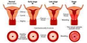 kanker serviks stadium 3